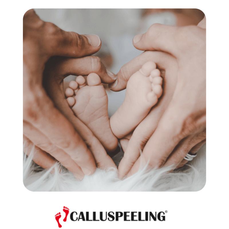 Calluspeeling® pieds de bébé calluspeeling yumi feet anti callosite mavex pieds bébés soin pedicure express pas cher